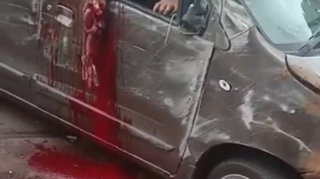 CAR ACCIDENT ENDS WITH BROKEN HAND